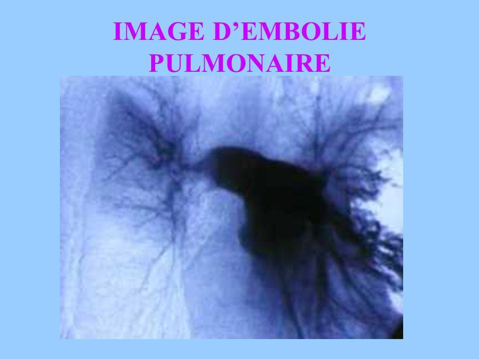 Intérêt: Visualisation de la circulation pulmonaire: Perméabilité des vaisseaux et richesse de la vascularisation. Diagnostic dune embolie pulmonaire.