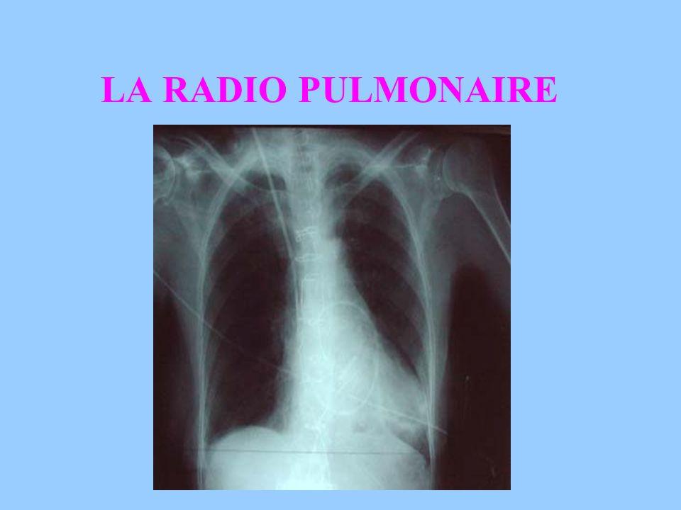 LA PONCTION PLEURALE Geste médical après contrôle radiologique.