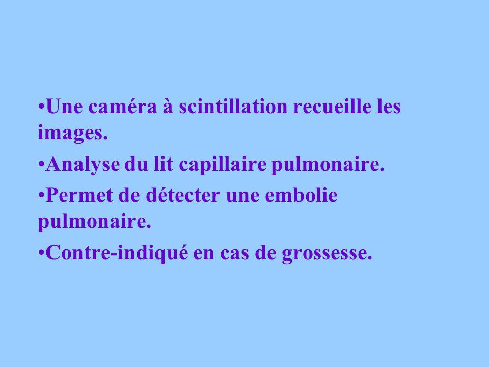 LA SCINTIGRAPHIE PULMONAIRE Scintigraphie de perfusion: Injection dun produit radioactif. Scintigraphie de ventilation: Inhalation dun gaz xénon radio