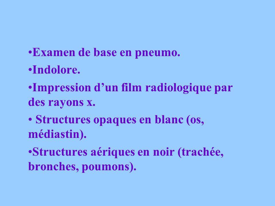 Examen de base en pneumo.Indolore. Impression dun film radiologique par des rayons x.