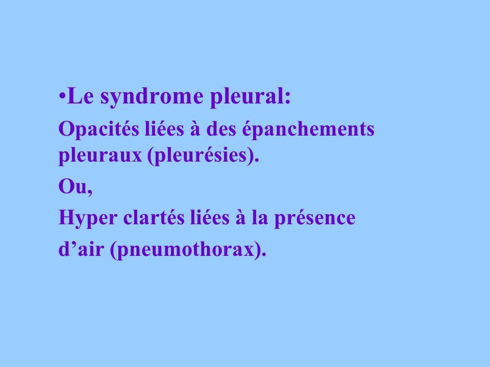 ON DEFINIT: Le syndrome alvéolaire : Opacités (blanches) à contours flous (Pneumonies, tuberculose, contusions…) Le syndrome interstitiel: Opacités à