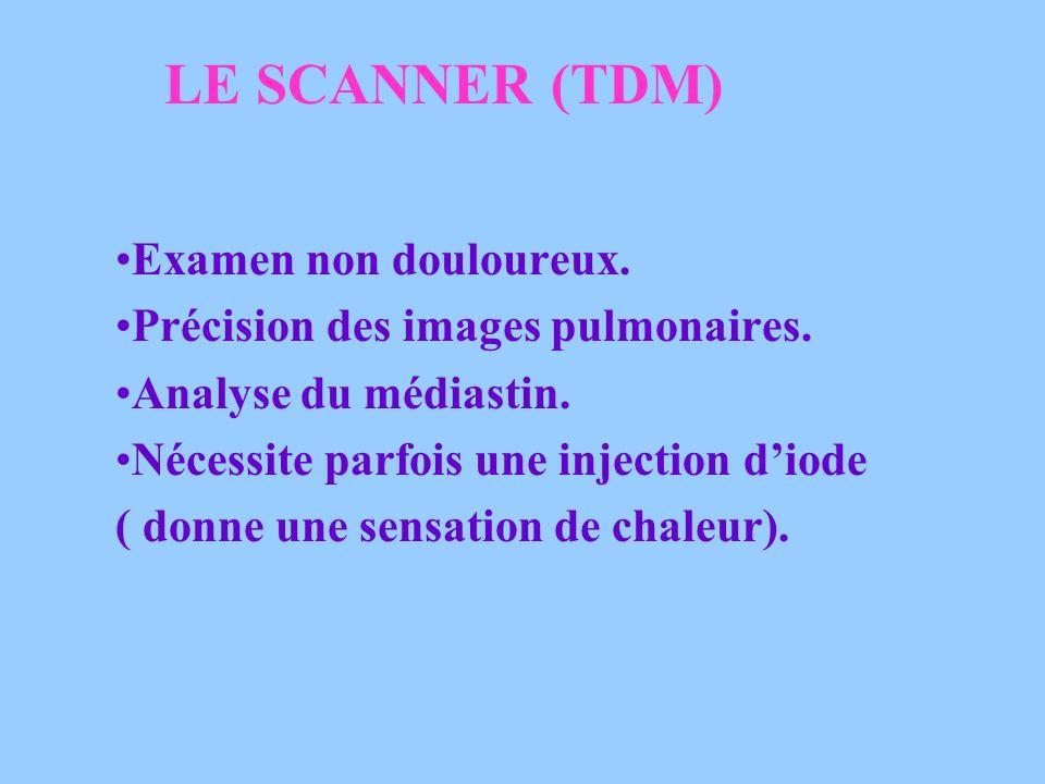 LE SCANNER (TDM) Examen non douloureux.Précision des images pulmonaires.