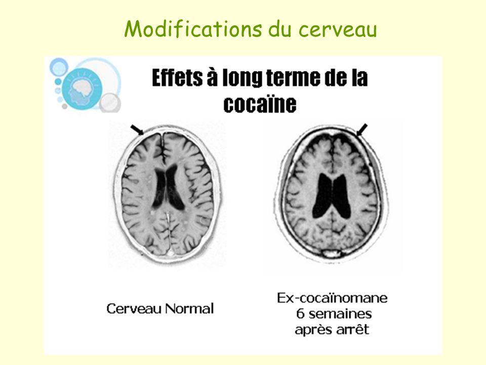 Modifications du cerveau