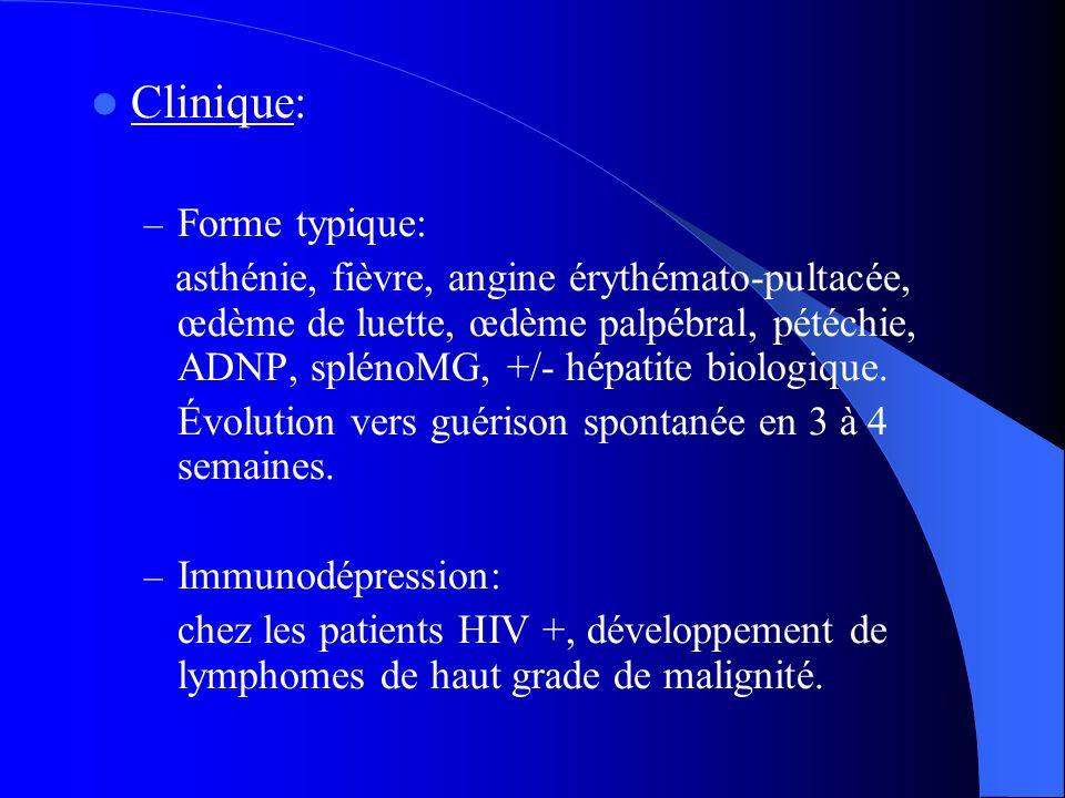 Clinique: – Forme typique: asthénie, fièvre, angine érythémato-pultacée, œdème de luette, œdème palpébral, pétéchie, ADNP, splénoMG, +/- hépatite biol