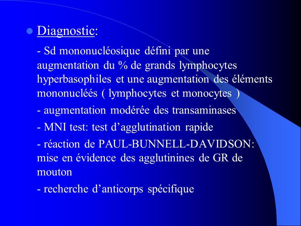 Diagnostic: - Sd mononucléosique défini par une augmentation du % de grands lymphocytes hyperbasophiles et une augmentation des éléments mononucléés (