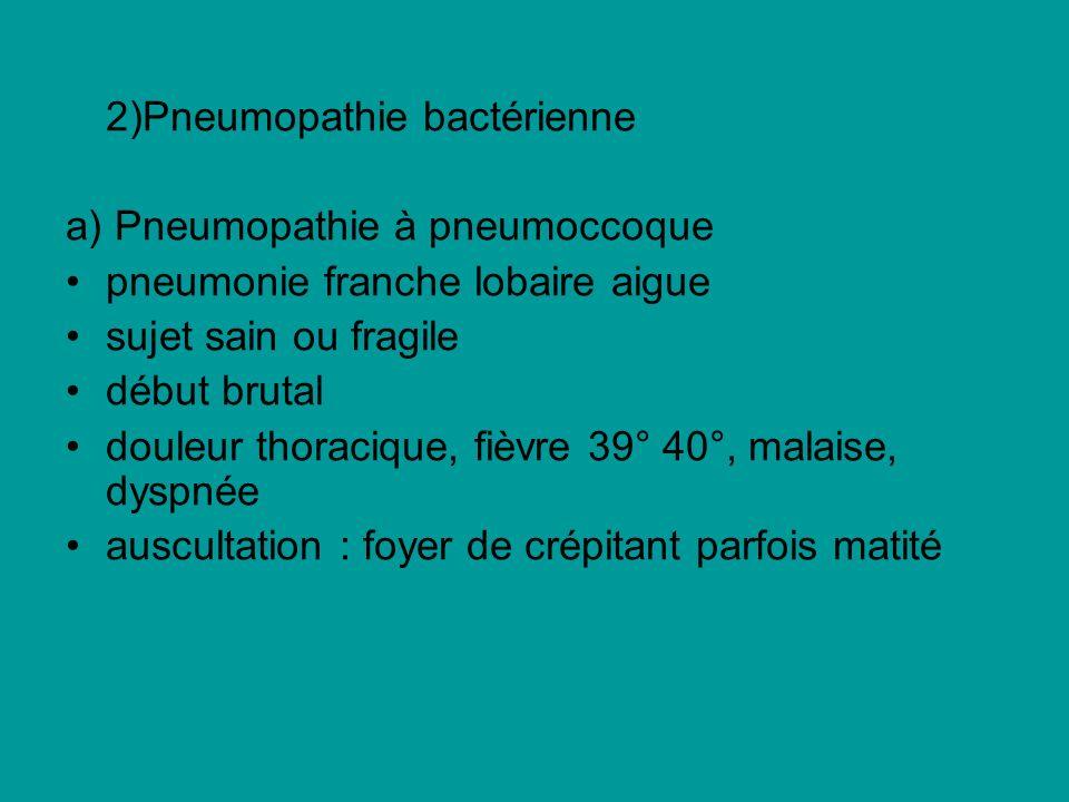 2)Pneumopathie bactérienne a) Pneumopathie à pneumoccoque pneumonie franche lobaire aigue sujet sain ou fragile début brutal douleur thoracique, fièvr
