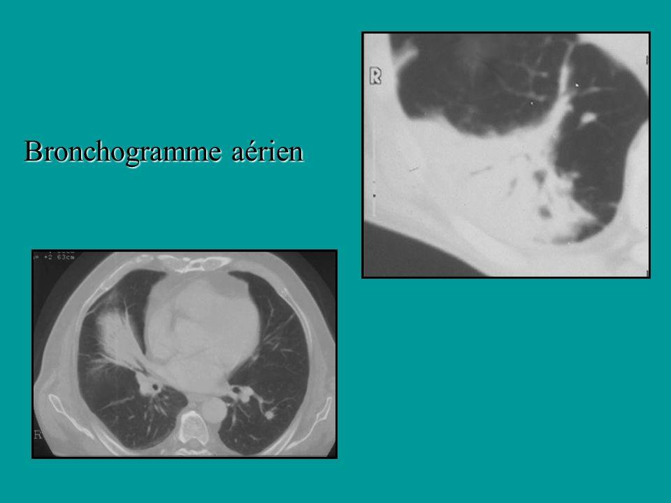 Bronchogramme aérien