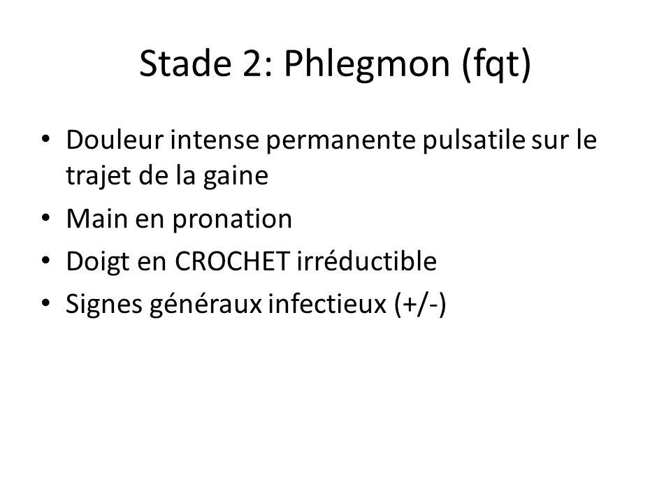 Stade 2: Phlegmon (fqt) Douleur intense permanente pulsatile sur le trajet de la gaine Main en pronation Doigt en CROCHET irréductible Signes généraux