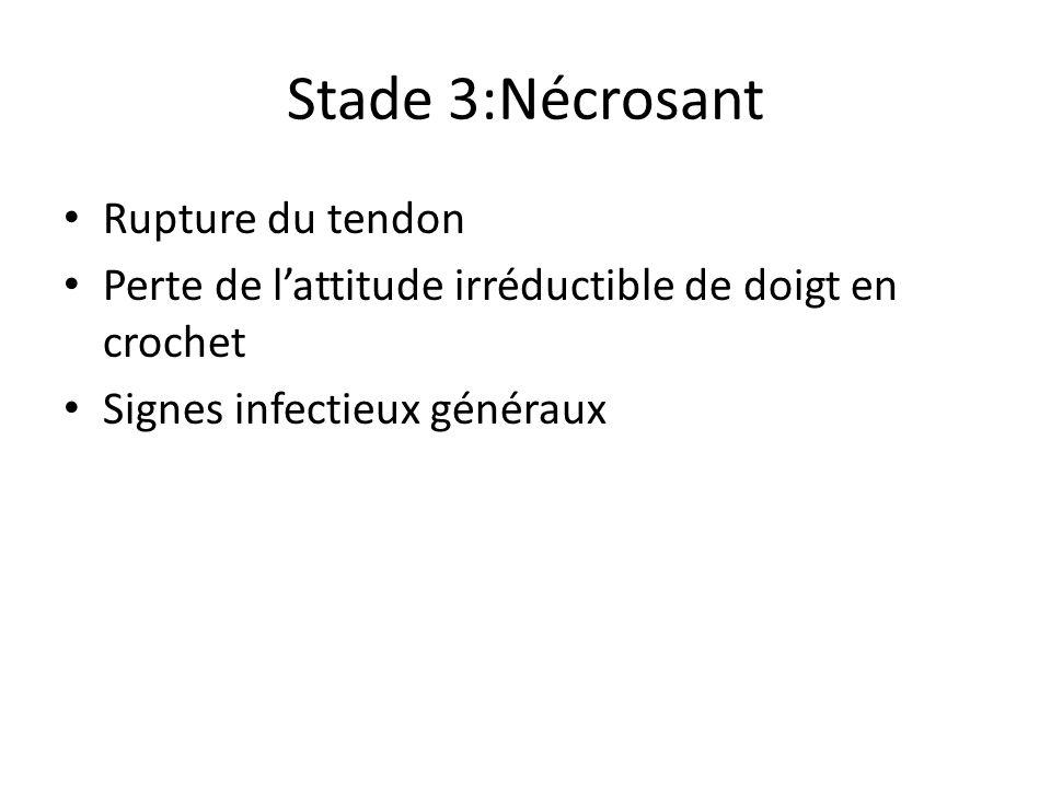 Stade 3:Nécrosant Rupture du tendon Perte de lattitude irréductible de doigt en crochet Signes infectieux généraux