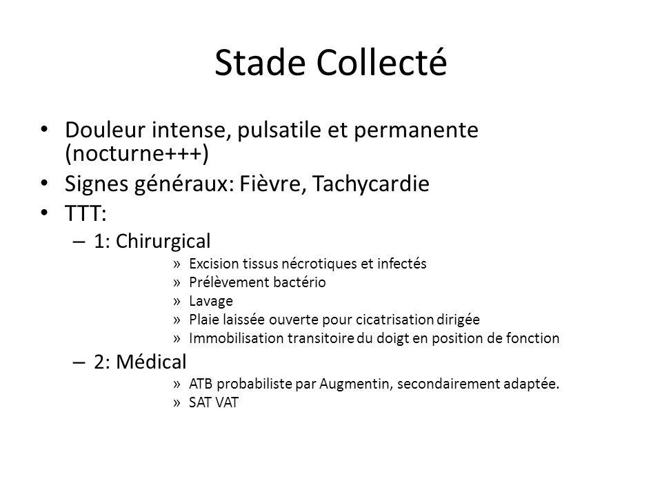Stade Collecté Douleur intense, pulsatile et permanente (nocturne+++) Signes généraux: Fièvre, Tachycardie TTT: – 1: Chirurgical » Excision tissus néc