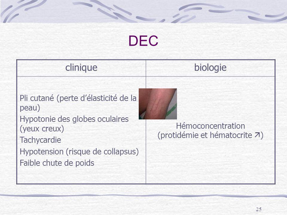 25 DEC cliniquebiologie Pli cutané (perte délasticité de la peau) Hypotonie des globes oculaires (yeux creux) Tachycardie Hypotension (risque de colla