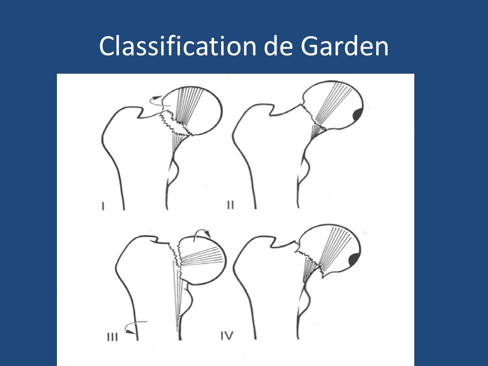 Classification de Garden