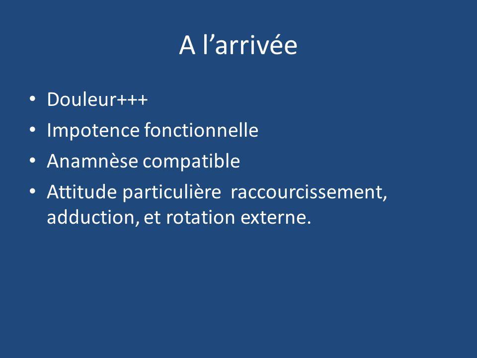 A larrivée Douleur+++ Impotence fonctionnelle Anamnèse compatible Attitude particulière raccourcissement, adduction, et rotation externe.