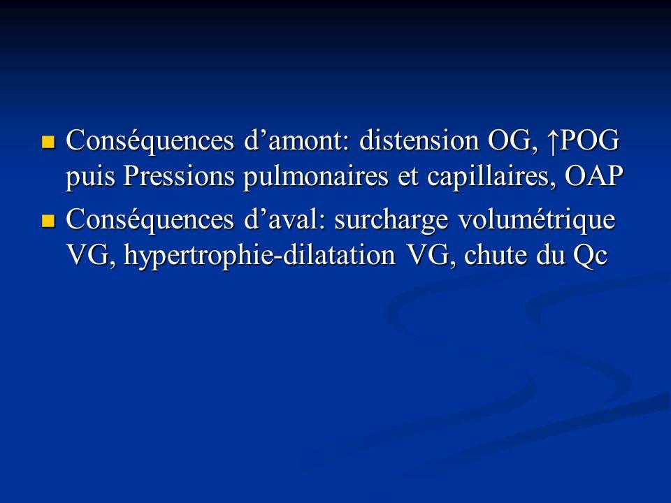 Conséquences damont: distension OG, POG puis Pressions pulmonaires et capillaires, OAP Conséquences damont: distension OG, POG puis Pressions pulmonai