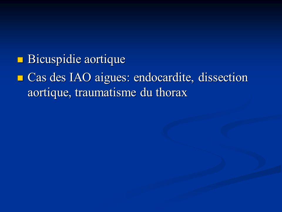 Bicuspidie aortique Bicuspidie aortique Cas des IAO aigues: endocardite, dissection aortique, traumatisme du thorax Cas des IAO aigues: endocardite, d