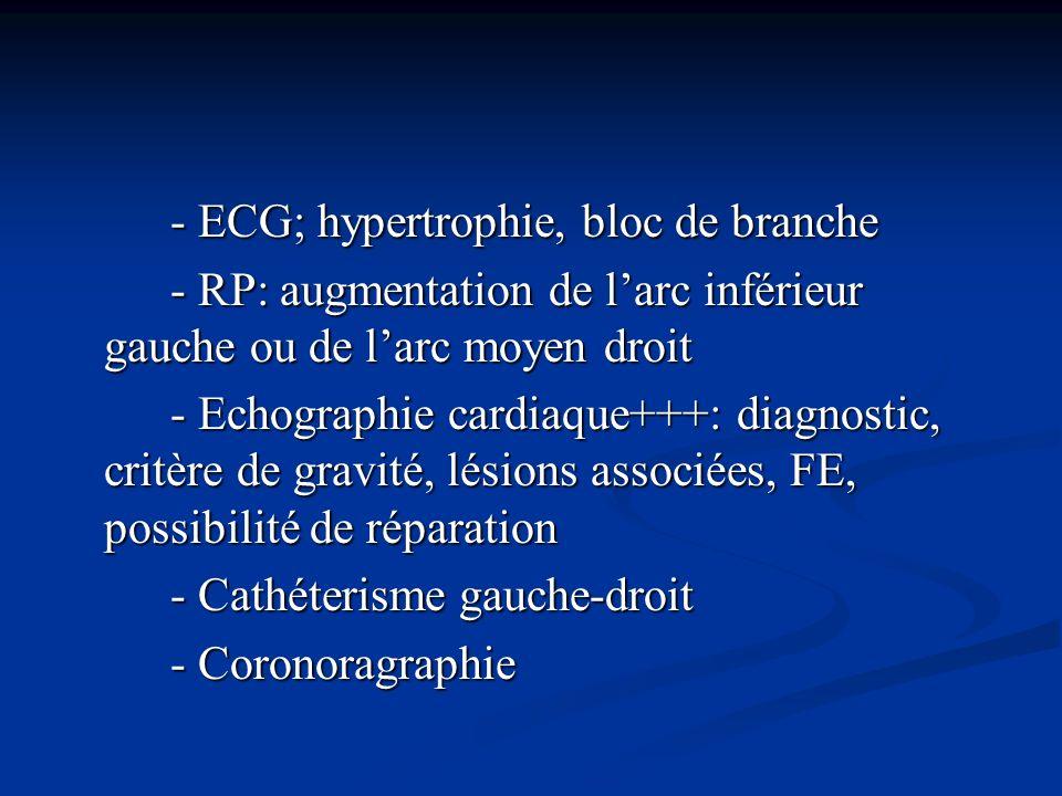 - ECG; hypertrophie, bloc de branche - ECG; hypertrophie, bloc de branche - RP: augmentation de larc inférieur gauche ou de larc moyen droit - RP: aug