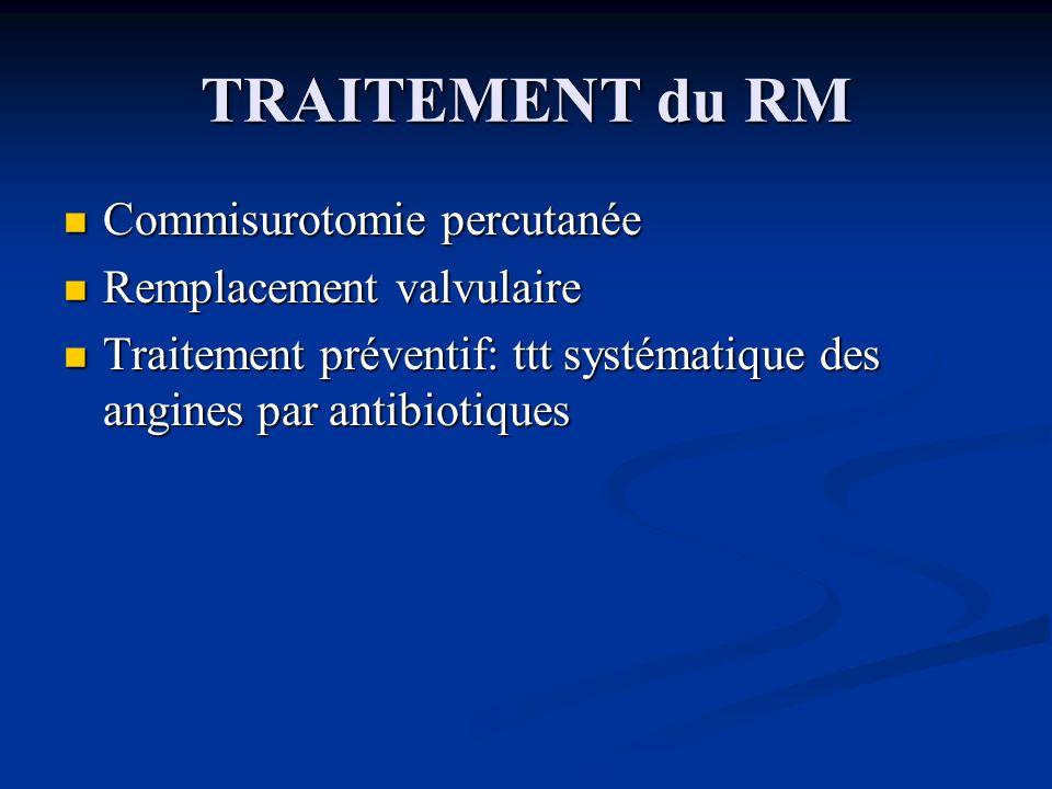 TRAITEMENT du RM Commisurotomie percutanée Commisurotomie percutanée Remplacement valvulaire Remplacement valvulaire Traitement préventif: ttt systéma