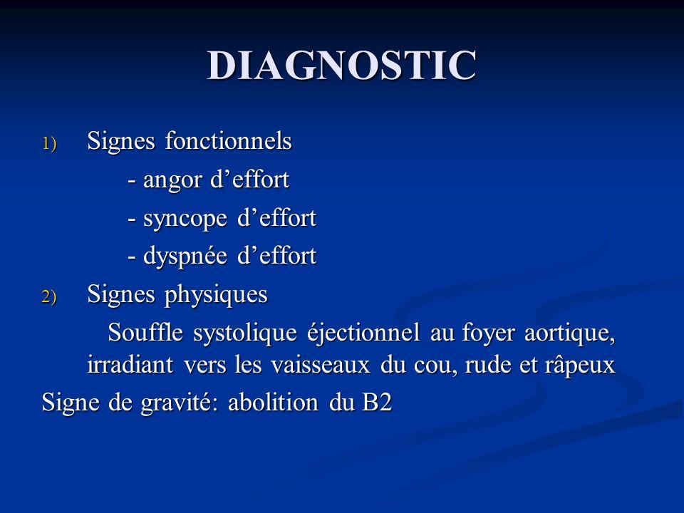 DIAGNOSTIC 1) Signes fonctionnels - dyspnée deffort - dyspnée deffort - hémoptysies - hémoptysies - tr du rythme - tr du rythme 2) Signes physiques Rythme de Durozier: éclat du B1, systole libre, claquement douverture, roulement diastolique, renforcement présystolique Rythme de Durozier: éclat du B1, systole libre, claquement douverture, roulement diastolique, renforcement présystolique