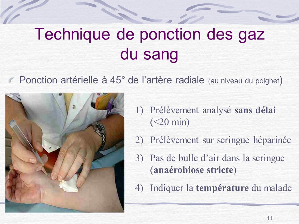 44 Technique de ponction des gaz du sang Ponction artérielle à 45° de lartère radiale (au niveau du poignet ) 1)Prélèvement analysé sans délai (<20 mi