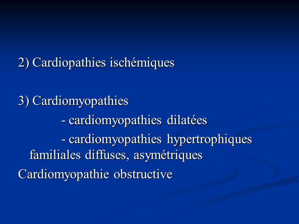 2) Cardiopathies ischémiques 3) Cardiomyopathies - cardiomyopathies dilatées - cardiomyopathies dilatées - cardiomyopathies hypertrophiques familiales
