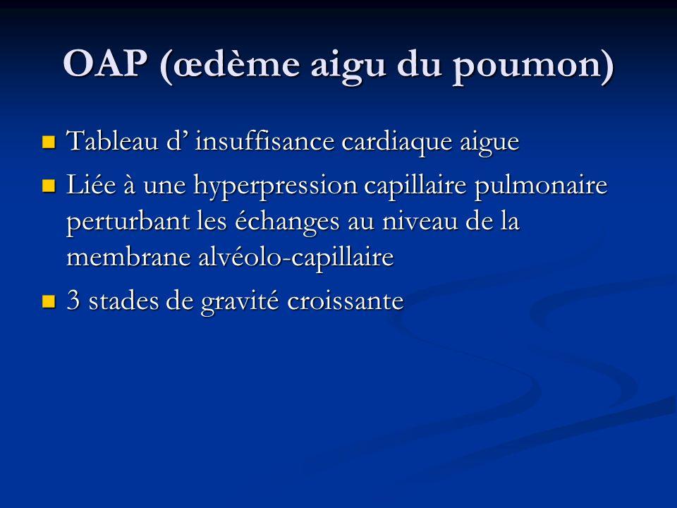 OAP (œdème aigu du poumon) Tableau d insuffisance cardiaque aigue Tableau d insuffisance cardiaque aigue Liée à une hyperpression capillaire pulmonair