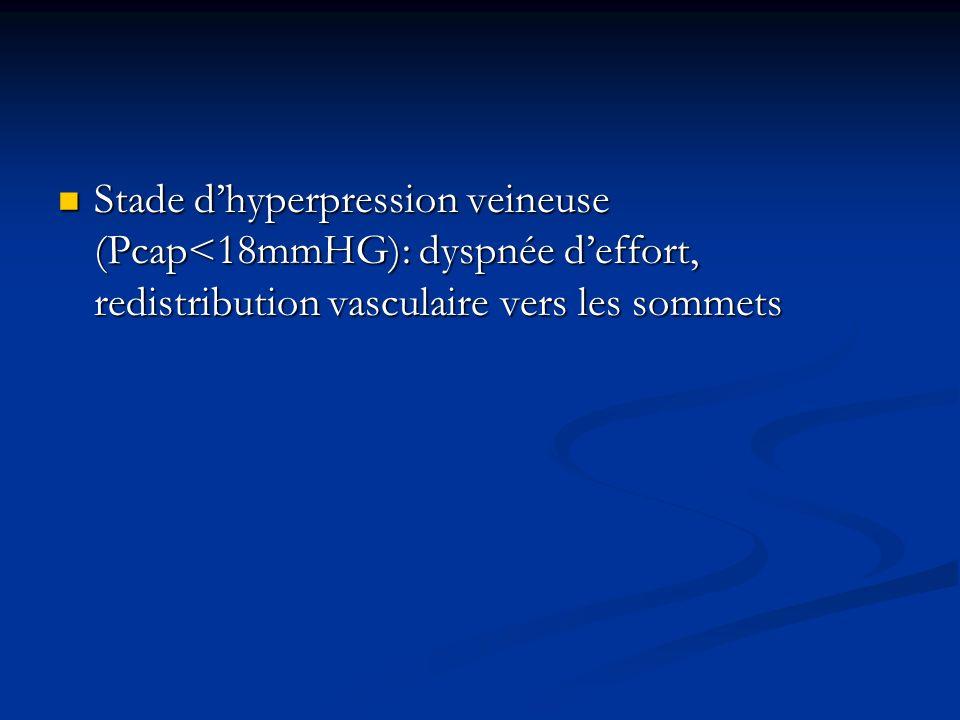 Stade dhyperpression veineuse (Pcap<18mmHG): dyspnée deffort, redistribution vasculaire vers les sommets Stade dhyperpression veineuse (Pcap<18mmHG):