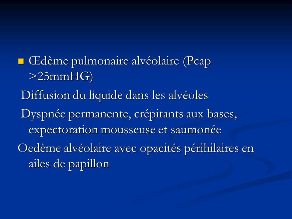 Œdème pulmonaire alvéolaire (Pcap >25mmHG) Œdème pulmonaire alvéolaire (Pcap >25mmHG) Diffusion du liquide dans les alvéoles Diffusion du liquide dans