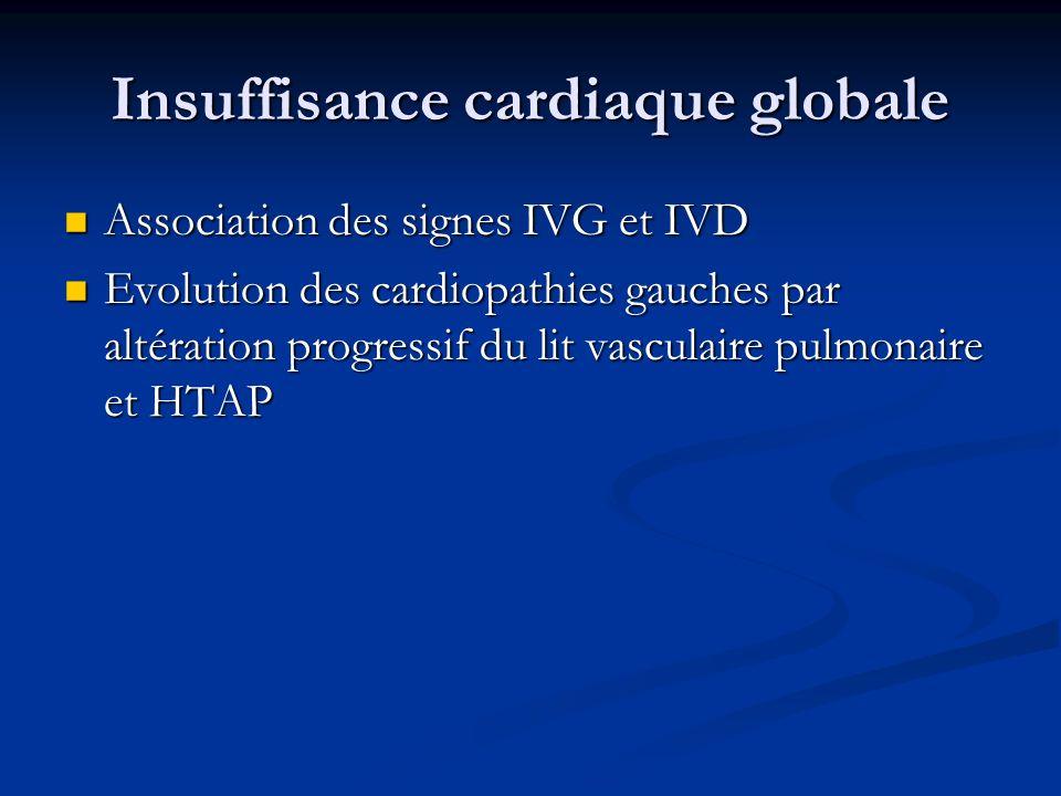Insuffisance cardiaque globale Association des signes IVG et IVD Association des signes IVG et IVD Evolution des cardiopathies gauches par altération