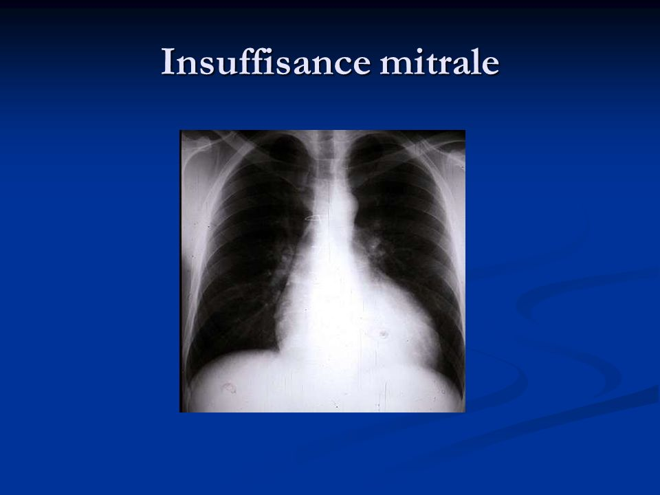 Insuffisance mitrale