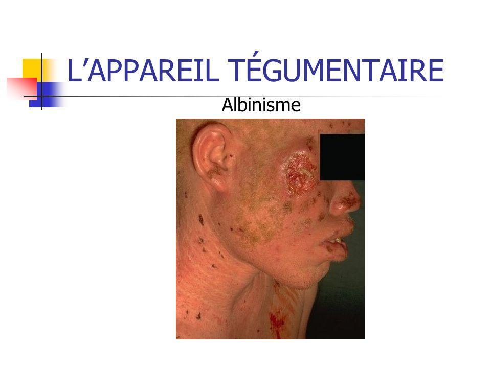 LAPPAREIL TÉGUMENTAIRE Albinisme