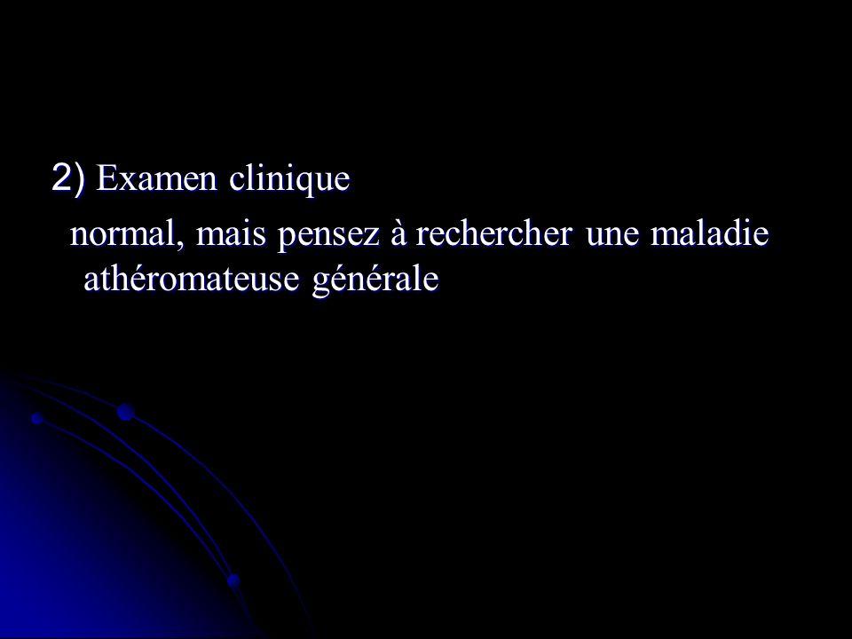 2) Examen clinique normal, mais pensez à rechercher une maladie athéromateuse générale normal, mais pensez à rechercher une maladie athéromateuse géné