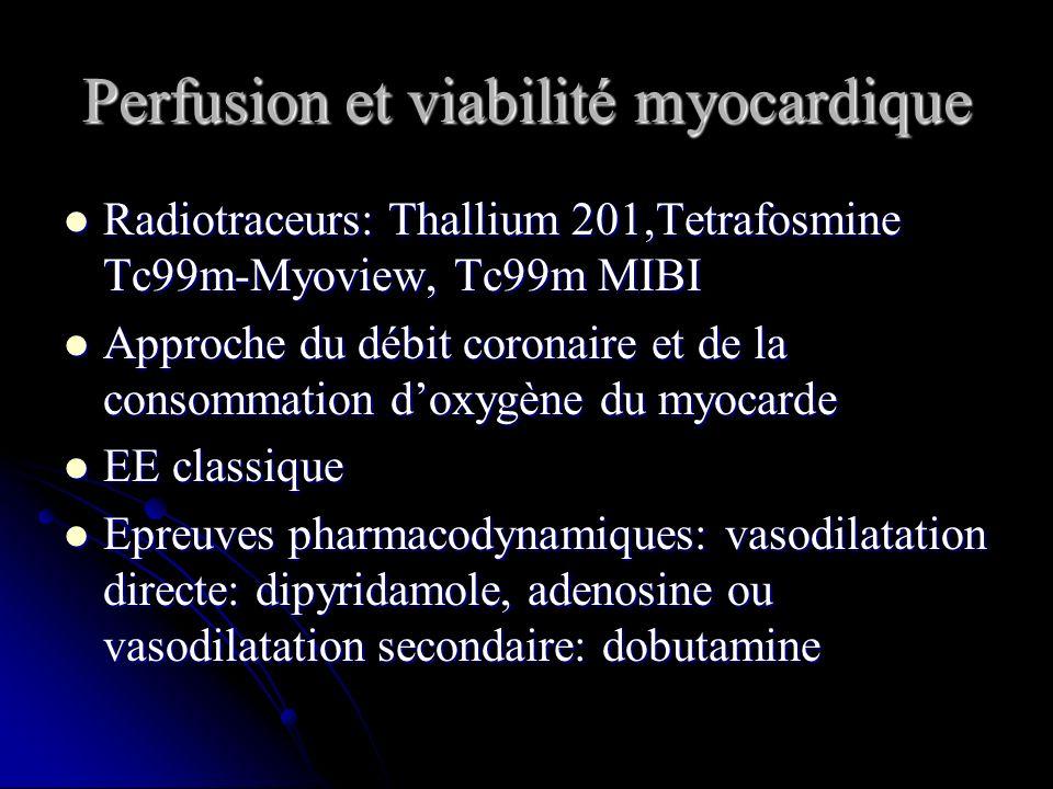 Perfusion et viabilité myocardique Radiotraceurs: Thallium 201,Tetrafosmine Tc99m-Myoview, Tc99m MIBI Radiotraceurs: Thallium 201,Tetrafosmine Tc99m-M
