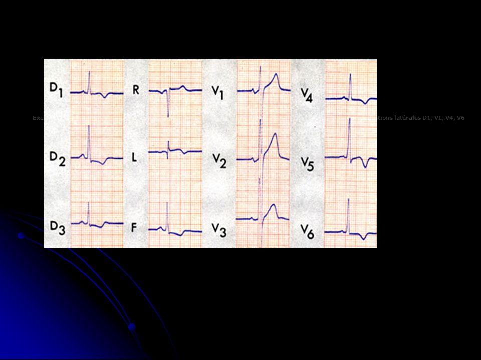 Exemple de sous-décalage du segment ST dans les dérivations inférieures et inversion de l'onde T dans les dérivations latérales D1, VL, V4, V6