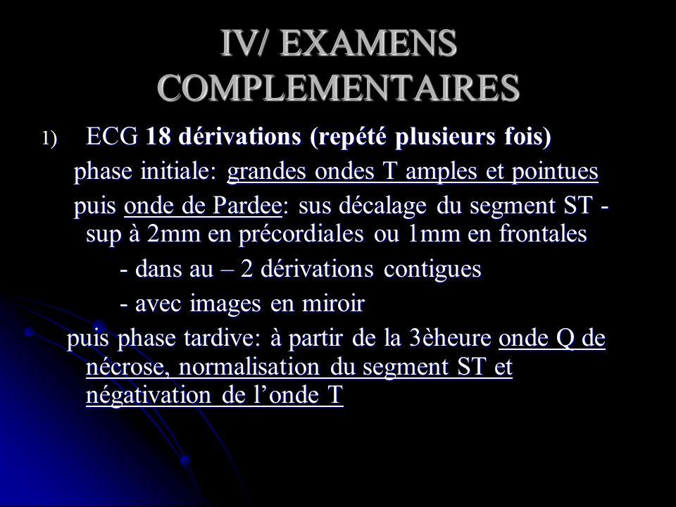 IV/ EXAMENS COMPLEMENTAIRES 1) ECG 18 dérivations (repété plusieurs fois) phase initiale: grandes ondes T amples et pointues phase initiale: grandes o