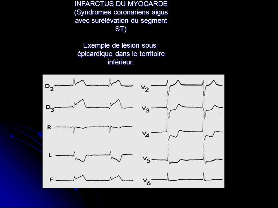 INFARCTUS DU MYOCARDE (Syndromes coronariens aigus avec surélévation du segment ST) Exemple de lésion sous- épicardique dans le territoire inférieur.