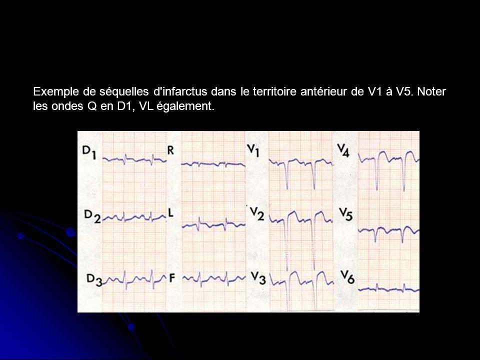 Exemple de séquelles d'infarctus dans le territoire antérieur de V1 à V5. Noter les ondes Q en D1, VL également.