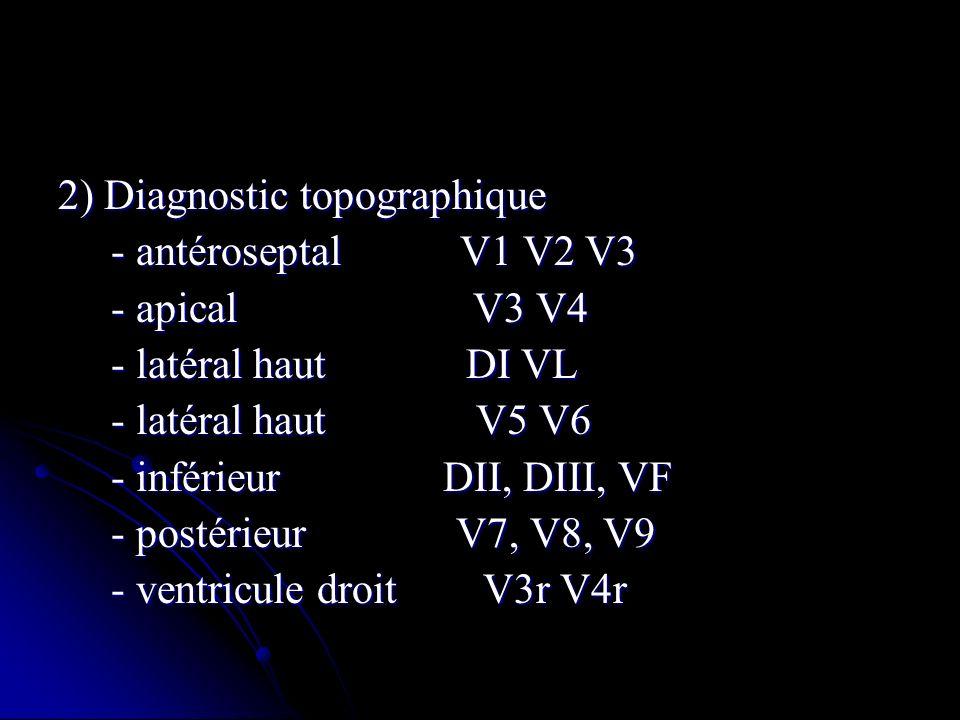 2) Diagnostic topographique - antéroseptal V1 V2 V3 - antéroseptal V1 V2 V3 - apical V3 V4 - apical V3 V4 - latéral haut DI VL - latéral haut DI VL -