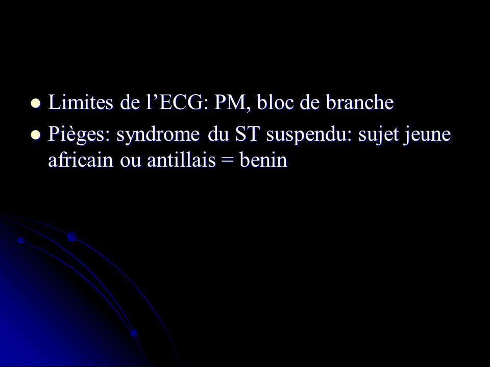 Limites de lECG: PM, bloc de branche Limites de lECG: PM, bloc de branche Pièges: syndrome du ST suspendu: sujet jeune africain ou antillais = benin P