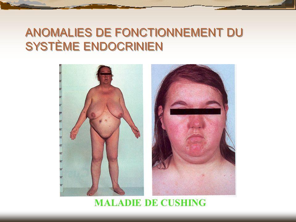 ANOMALIES DE FONCTIONNEMENT DU SYSTÈME ENDOCRINIEN MALADIE DE CUSHING