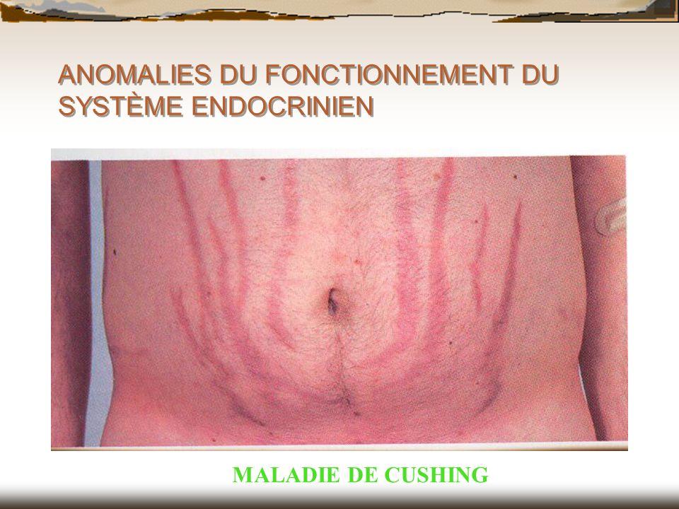 ANOMALIES DU FONCTIONNEMENT DU SYSTÈME ENDOCRINIEN MALADIE DE CUSHING