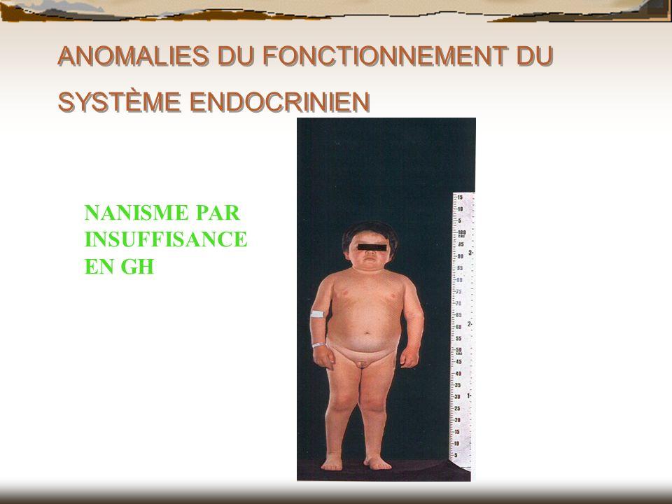 ANOMALIES DU FONCTIONNEMENT DU SYSTÈME ENDOCRINIEN NANISME PAR INSUFFISANCE EN GH