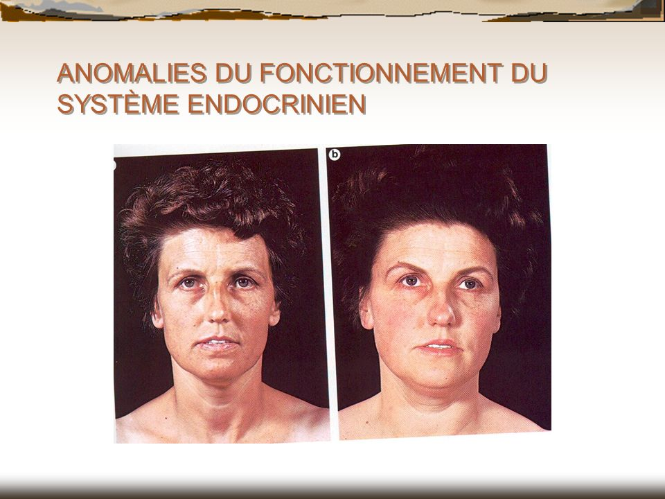 ANOMALIES DU FONCTIONNEMENT DU SYSTÈME ENDOCRINIEN