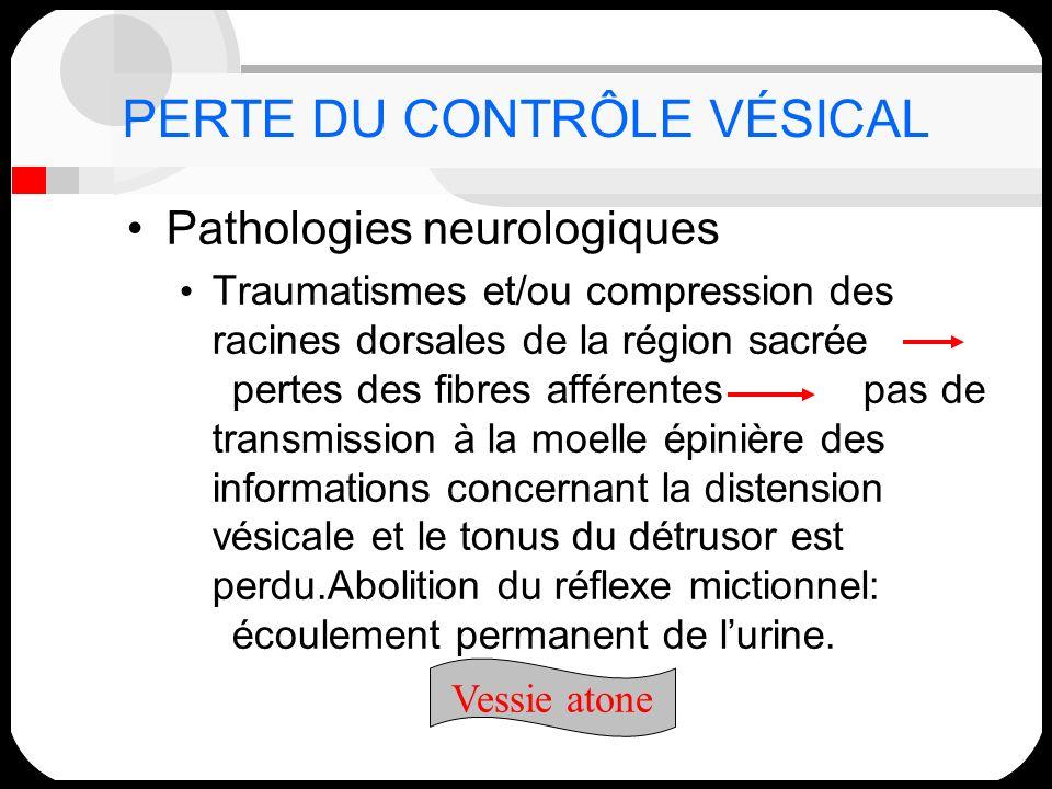 PERTE DU CONTRÔLE VÉSICAL Pathologies neurologiques Traumatismes et/ou compression des racines dorsales de la région sacrée pertes des fibres afférent