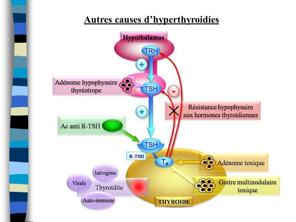 Autres causes dhyperthyroidies