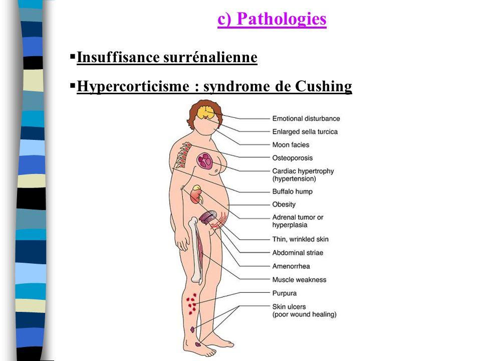 Insuffisance surrénalienne Hypercorticisme : syndrome de Cushing c) Pathologies
