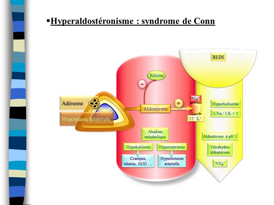 Hyperaldostéronisme : syndrome de Conn