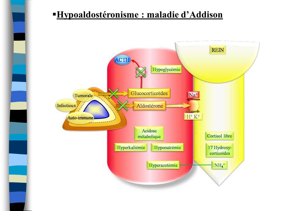 Hypoaldostéronisme : maladie dAddison