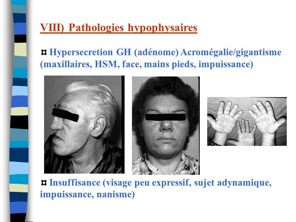 VIII) Pathologies hypophysaires Hypersecretion GH (adénome) Acromégalie/gigantisme (maxillaires, HSM, face, mains pieds, impuissance) Insuffisance (vi
