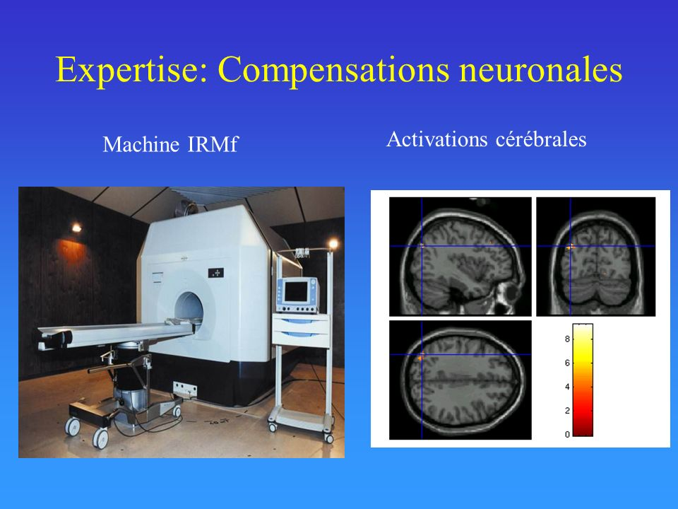 Expertise: Compensations neuronales Activations cérébrales Machine IRMf