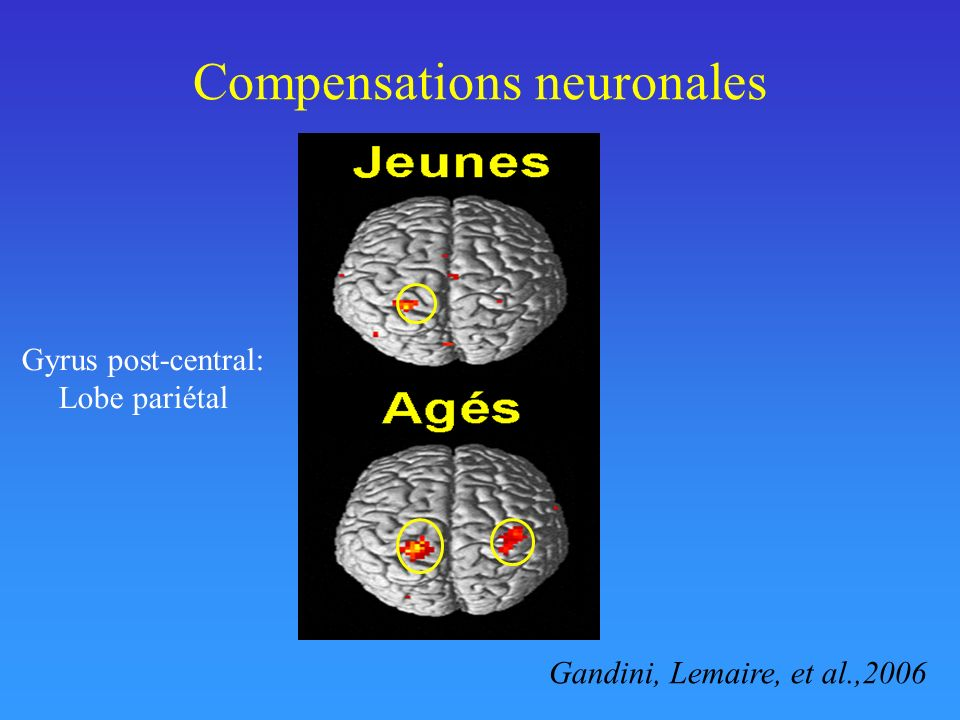 Compensations neuronales Gandini, Lemaire, et al.,2006 Gyrus post-central: Lobe pariétal